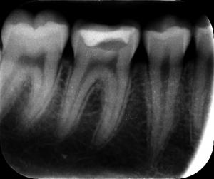Zdjęcie RTG zębowe (wewnątrzustne)