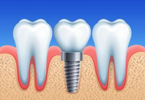 implant pojedynczy ząb