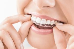 wybielanie zębów nakładki
