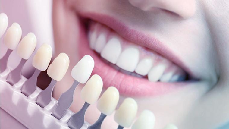 Co warto wiedzieć o wybielaniu zębów u dentysty?